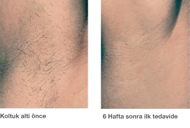Elos Haarentfernung Türkisch