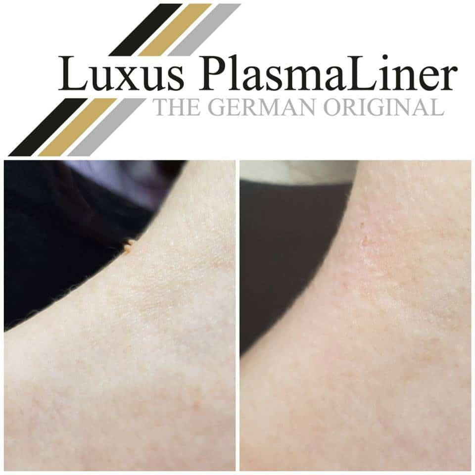 Plasma Beispiel