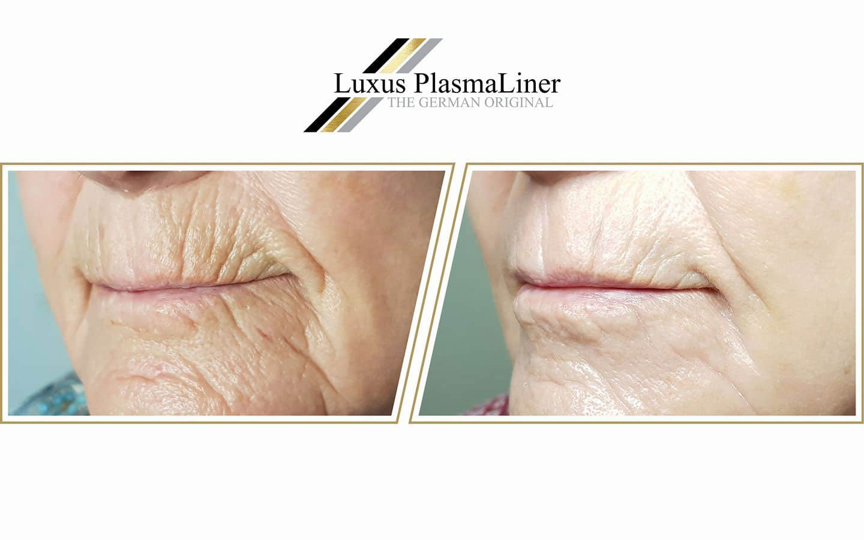 Anti-Aging mit Luxus Plasma Liner
