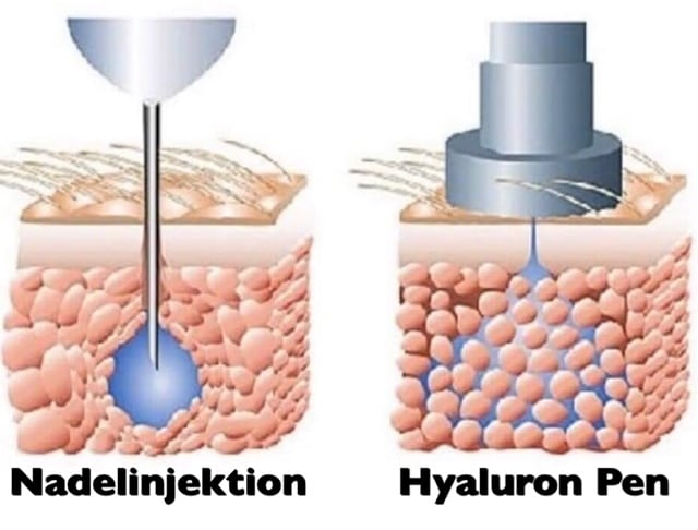 Hyaloron Pen